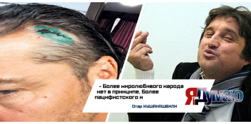 На Украине разбили голову солисту группы «На-На», вступившемуся за Кобзона